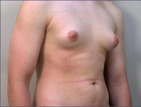 Ginecomastia na puberdade