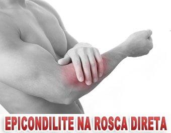 epicondilite na rosca direta dor no braco