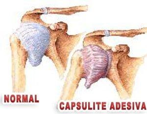 Capsulite adesiva ombro congelado