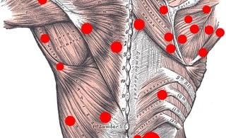 pontos gatilho miofasciais trigger points tratamento