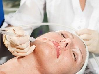 peeling facial tratamento