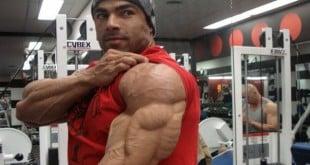 treino de triceps mais eficiente resultados