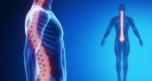 musculacao aplicada a melhora dos desvios posturais