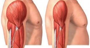 Sarcopenia causas tratamento