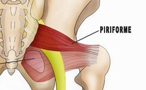 Síndrome do piriforme,