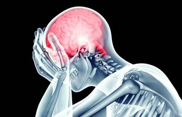 AVC acidente vascular cerebral