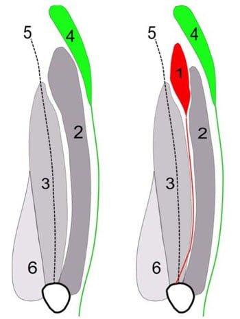 localização TVI tensor do vasto intermédio