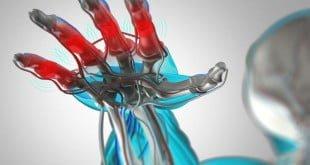 Artrite - Causas, sintomas e tratamentos