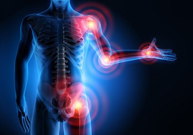Reumatismo sintomas causas e tratamentos