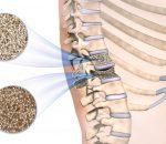 Osteoporose – O que é, causas, sintomas e tratamentos