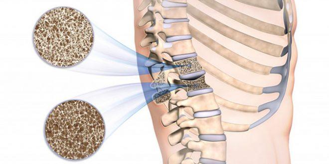 osteoporose - o que e