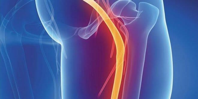 Exercícios que aliviam a dor no nervo ciático