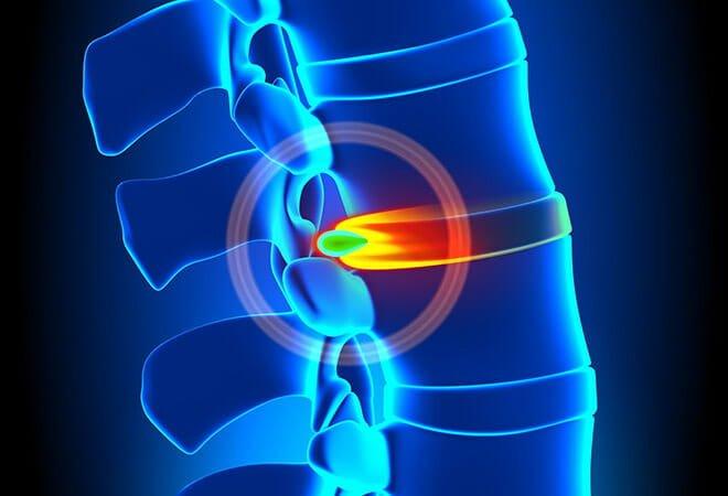 hernia de disco exercícios proibidos musculação